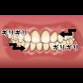 歯ぎしり(歯軋り)や食いしばり
